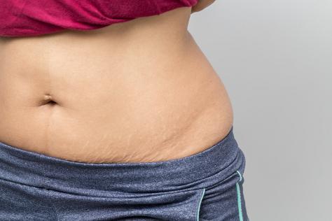 flat tummy 474