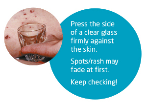 Meningitis glass test