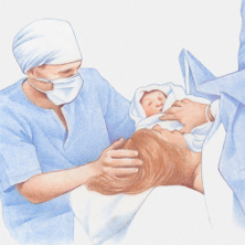 Woman having a c section